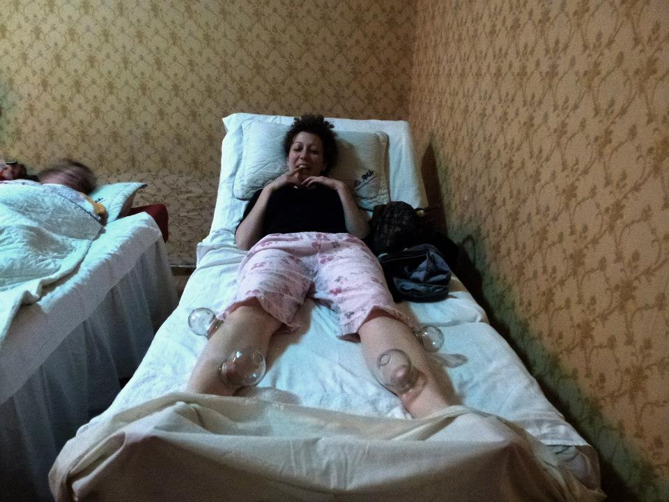 Cupping therapy 3 unusual beijing